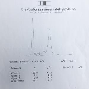 Primjer proteinograma